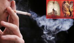 Bác sĩ khuyến cáo 10 tác hại khủng khiếp của thuốc lá mà bạn không ngờ tới