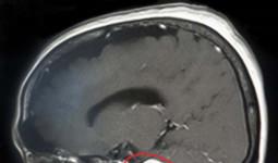 Lấy ra khối u to như quả bóng bàn trong não bệnh nhân