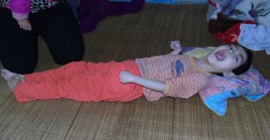 Mỗi ngày buộc phải cho con uống 12 viên thuốc ngủ, người mẹ đau đớn chứng kiến con ngày càng héo úa