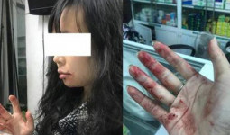 Lái xe Uber đánh nữ hành khách ở Hà Nội: Tôi cũng rất mệt mỏi, ân hận