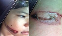 Bé gái bị bạo hành bằng sắt nung đỏ dí vào hai cánh tay