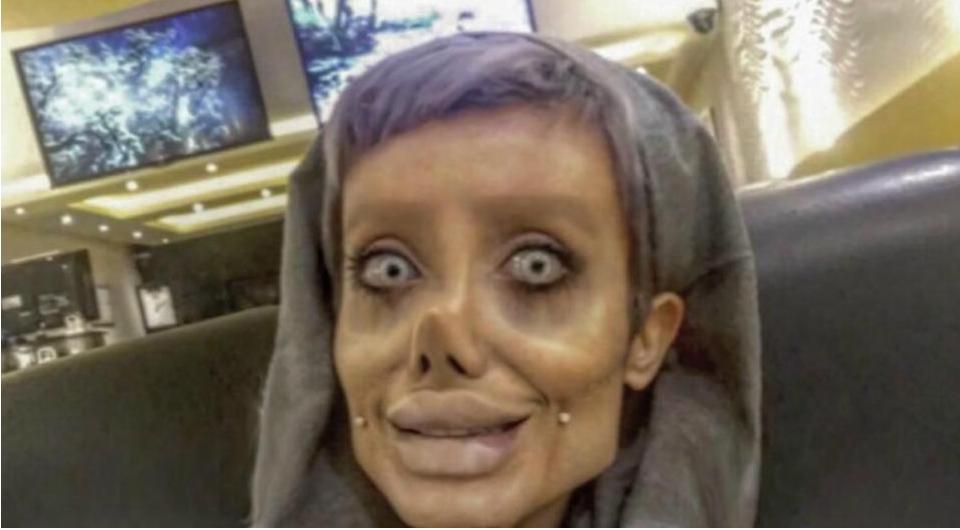 Cô gái phẫu thuật thẩm mỹ hơn 50 lần đề nhìn giống Angelina Jolie, kết quả trả về gia tinh Dobby - Ảnh 2.