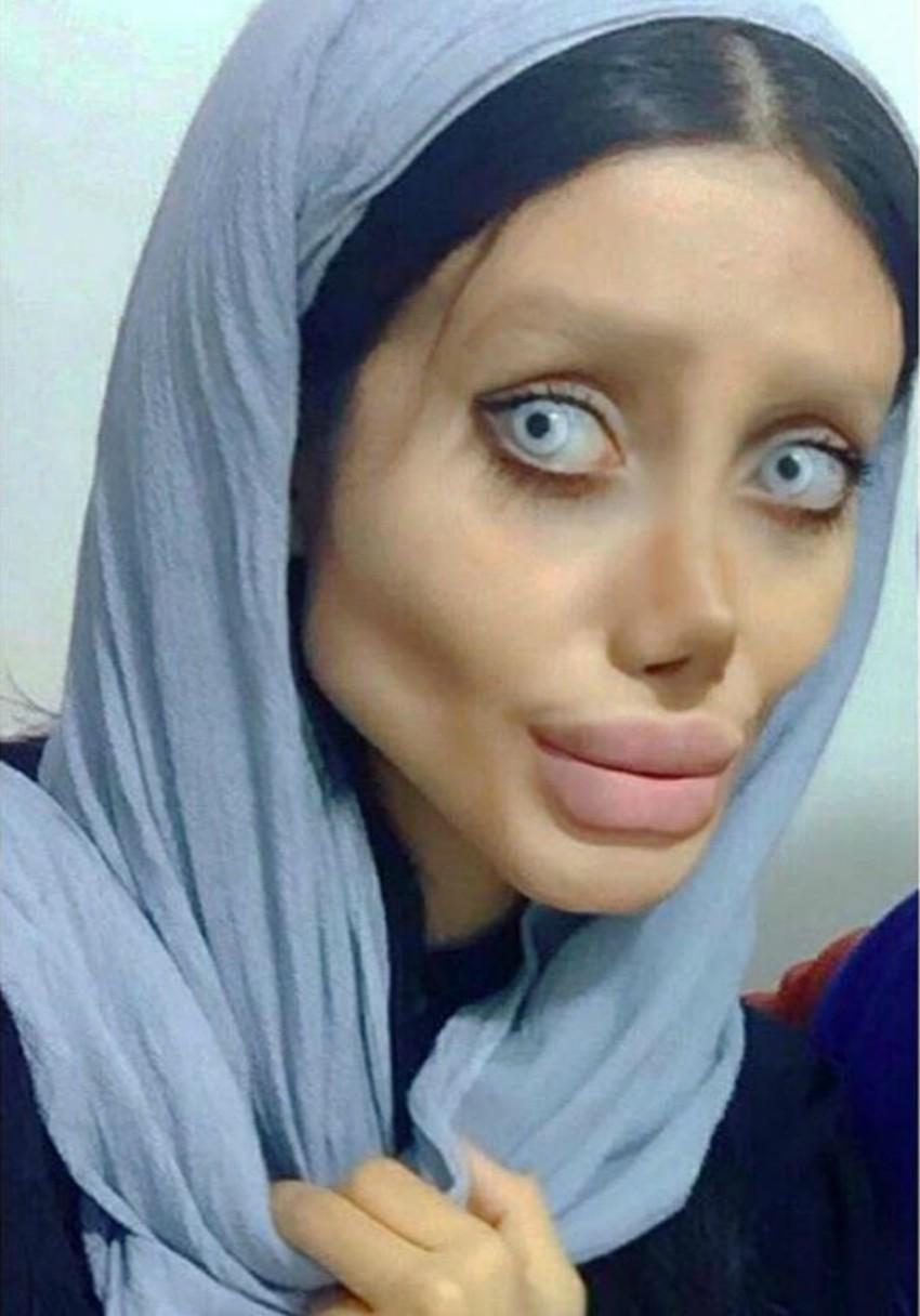 Cô gái phẫu thuật thẩm mỹ hơn 50 lần đề nhìn giống Angelina Jolie, kết quả trả về gia tinh Dobby - Ảnh 3.