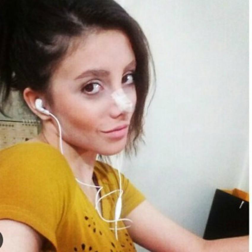 Cô gái phẫu thuật thẩm mỹ hơn 50 lần đề nhìn giống Angelina Jolie, kết quả trả về gia tinh Dobby - Ảnh 7.