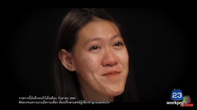 """Nhìn 7 màn """"lột xác"""" này của Thái Lan, ai cũng muốn đi phẫu thuật thẩm mỹ ngay tức thì! - Ảnh 14."""