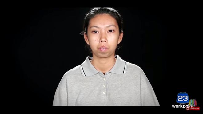"""Nhìn 7 màn """"lột xác"""" này của Thái Lan, ai cũng muốn đi phẫu thuật thẩm mỹ ngay tức thì! - Ảnh 6."""