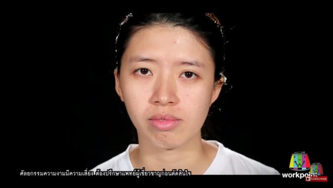 """Nhìn 7 màn """"lột xác"""" này của Thái Lan, ai cũng muốn đi phẫu thuật thẩm mỹ ngay tức thì! - Ảnh 8."""