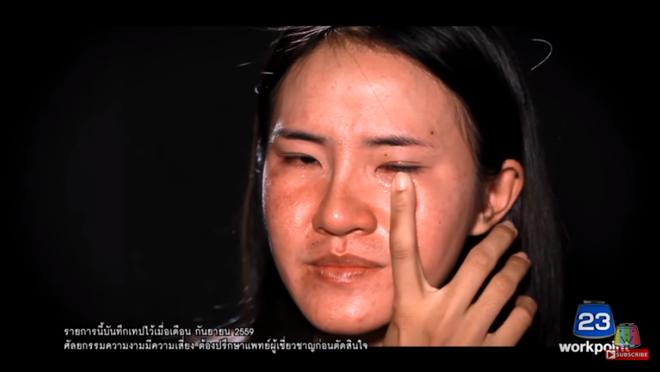 """Nhìn 7 màn """"lột xác"""" này của Thái Lan, ai cũng muốn đi phẫu thuật thẩm mỹ ngay tức thì! - Ảnh 10."""