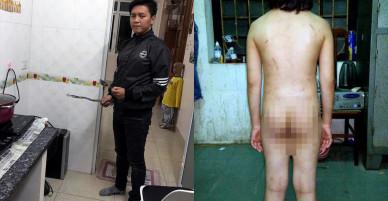 Hà Nội: Bé trai 10 tuổi bị bố đẻ bạo hành thời gian dài