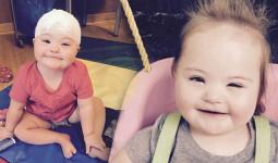 Mắc bệnh động kinh, bé gái không biết cười bất ngờ khỏi bệnh nhờ… ăn kem