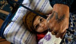 Thuật xăm mình bằng sữa mẹ của phụ nữ Thổ Nhĩ Kỳ