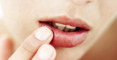 4 cách để môi không bị chảy máu trong mùa đông