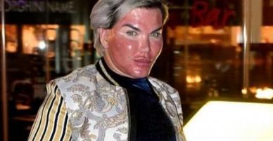 Tiêm filter căng da mặt quá tay, da mặt búp bê Ken phồng rộp như bị bỏng, mũi bị thủng một lỗ