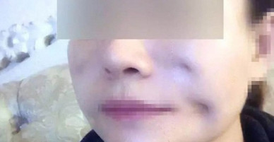 """Phẫu thuật xóa nếp nhăn lại bị lõm 8 chỗ trên mặt, thẩm mỹ viện trấn an: """"Muốn đẹp lên thì phải thành quỷ trước đã"""""""