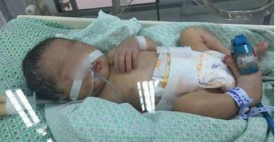 Bé gái 32 tuần tuổi bị mẹ phá thai để chối bỏ được nhóm thiện nguyện khi đi nhặt xác thai nhi cứu sống