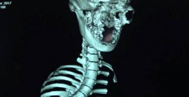 Phẫu thuật thành công cho bé gái có xương sống cong vẹo hình rắn