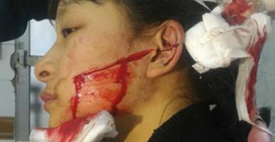 Nữ sinh lớp 11 bị cô gái dùng dao nhọn rạch mặt trong chợ