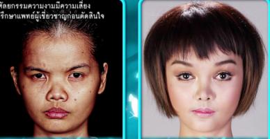 Phẫu thuật thẩm mỹ giống búp bê Barbie, nữ sinh Thái Lan bị cư dân mạng chỉ trích vì gương mặt quái dị