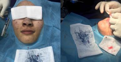 Sau phẫu thuật thẩm mĩ, bác sĩ tá hoả gắp ra cả đống chỉ trong cánh mũi xanh lét