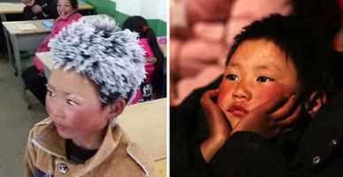 Cậu bé nghèo tóc đóng băng được ủng hộ hàng trăm nghìn USD