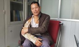 Bệnh nhân đầu tiên được thay đài quay tay nhân tạo ở Việt Nam