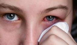 Không phải thuốc nhỏ, đây mới là mẹo xử lý bụi bay vào mắt nhanh và an toàn nhất