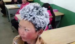 Cậu bé tóc đóng băng được quyên góp hơn 1 tỷ đồng nhưng chỉ nhận 28 triệu, lý do thực sự sẽ khiến bạn thấy ấm lòng