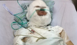 Điều tra vụ trai Tây tẩm xăng thiêu sống người phụ nữ Việt trên phố Hà Nội rồi bỏ trốn