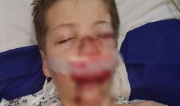 Bé trai suýt chết sau tai nạn đi xe đạp chỉ vì không tuân thủ hành động đảm bảo an toàn này