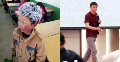 Câu chuyện cậu bé đầu băng lay động cả tỷ phú Jack Ma, thôi thúc ông làm nhiều hơn cho trẻ em Trung Quốc