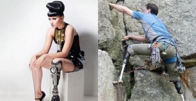 Những người khuyết tật nổi danh thế giới vì nghị lực phi thường