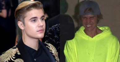 Hành trình lao dốc nhan sắc của Justin Bieber: Hoàng tử Baby năm xưa giờ đây mặt mũi xám xịt, mụn nổi chi chít