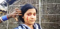 Cô gái bị xem như phù thủy vì đổ mồ hôi ra máu