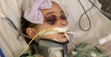 Mỹ: Vừa lỡ tay làm rơi tấm ván nặng 21kg, bố đã nghe tiếng thét thất thanh của cô con gái và gương mặt đẫm máu