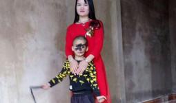 Cái Tết trọn vẹn đầu tiên của cậu bé 6 tuổi có khuôn mặt tựa người rừng tại Yên Bái