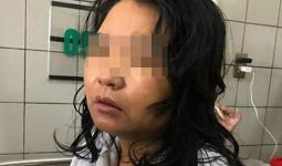 Nữ điều dưỡng nghi uống thực phẩm chức năng giảm cân ở Sơn La đã tử vong