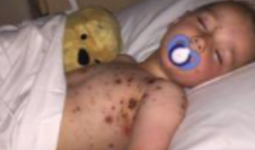 Anh: Con trai suýt chết vì sai lầm của bác sĩ, người mẹ lên tiếng với hy vọng không ai trải qua kinh nghiệm đau đớn như cô
