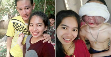 Cô gái 3 năm ở bên chăm sóc bạn trai bị ung thư biến dạng mặt