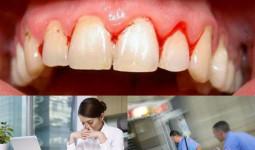Chảy máu chân răng: Dấu hiệu cảnh báo hàng loạt bệnh nguy hiểm