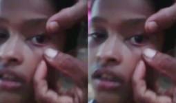 Kiến bò lổm ngổm ra khỏi mắt bé gái, bác sĩ hoàn toàn bó tay