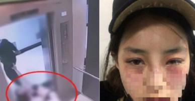 Cô gái Hàn Quốc bị bạn trai 19 tuổi đánh thừa sống thiếu chết