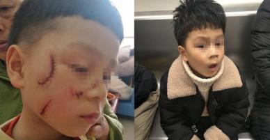 Cửa kính bất ngờ vỡ vụn, phụ huynh hoảng hốt khi thấy gương mặt của con trai