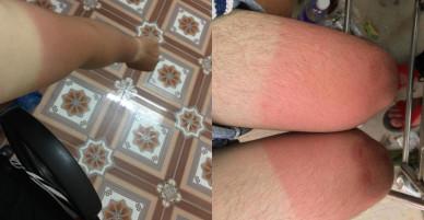 Ác mộng mùa hè: Dưỡng trắng 3 năm, cháy nắng 1 giờ!