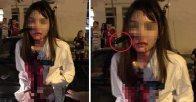 Bị tấn công khi đang bắt taxi, cô gái bình tĩnh đi báo công an với con dao cắm giữa mặt