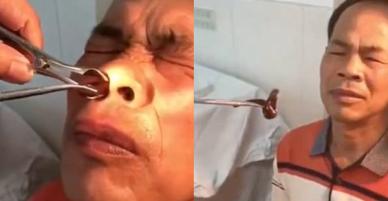 Trung Quốc: Ông chú đi khám mũi đau lâu ngày không khỏi, bác sĩ lôi ra nguyên con đỉa lớn đang ở nhờ bên trong
