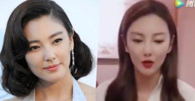 Bản sao Song Hye Kyo thừa nhận thẩm mỹ, gương mặt giờ đây nhọn hoắt đến khó lòng nhận ra