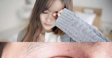 Không muốn mù lòa, hãy ghi nhớ những cách xử lý này khi bị dị vật bay vào mắt