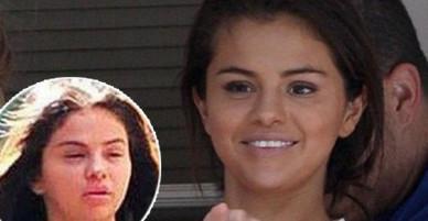 Mắt không còn sưng húp, nhưng Selena Gomez vẫn lộ vẻ già nua, kém sắc sau tin Justin đính hôn