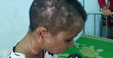 Tỉnh Gia Lai hỏa tốc yêu cầu xử lý vụ cô gái bị tra tấn dã man