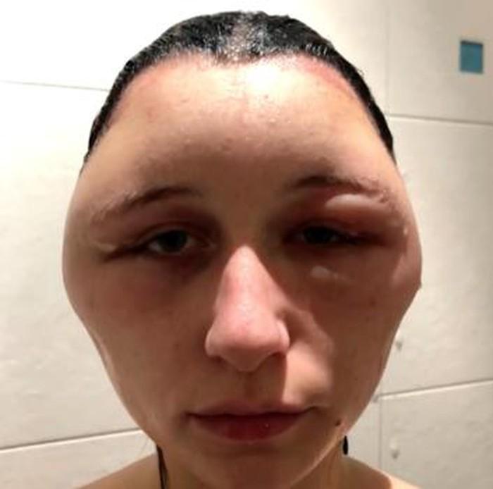 thuốc nhuộm tóc, dị ứng thuốc nhuộm tóc, hậu quả nhuộm tóc, nhuộm tóc, cách nhuộm tóc, tin8